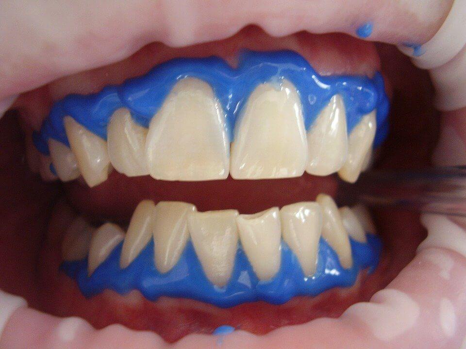 Wybielanie zębów: efekty i ich trwałość