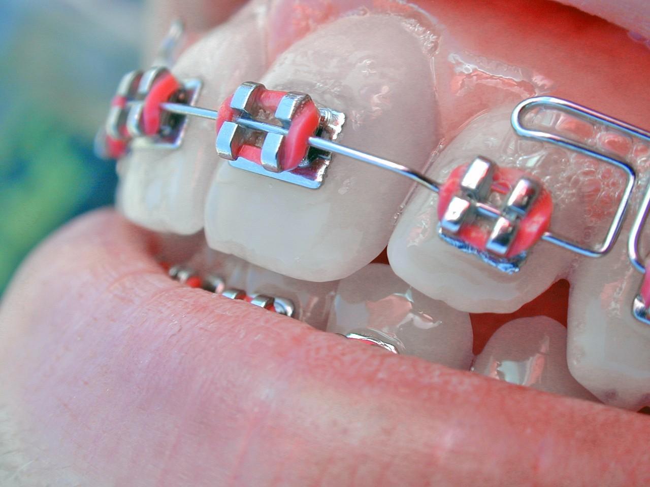 Odsłanianie zębów zatrzymanych w łuku